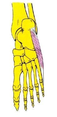 Vista 1 separador del 5º dedo